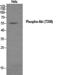 Akt (phospho Thr308) Polyclonal Antibody
